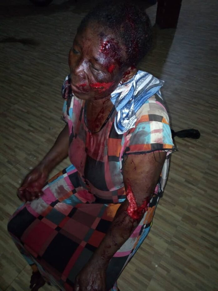 Savannah Region: Another Alleged Witch Nearly Killed At Sumpini In West Gonja